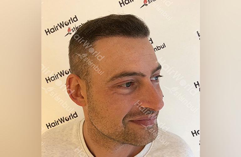 http://Ervaring-HairworldIstanbul-langeFrans-6