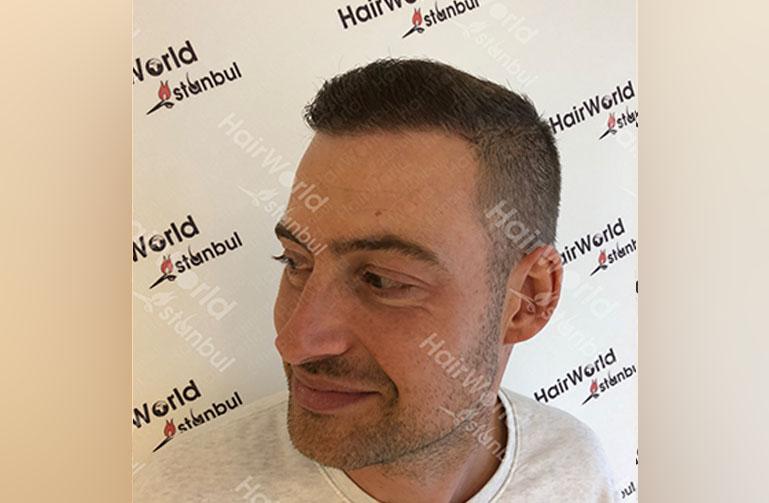 http://Ervaring-HairworldIstanbul-Lange-Frans-8