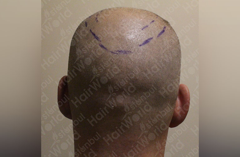 http://Haartransplantatie-ervaring-HairworldIstanbul-langeFrans-9