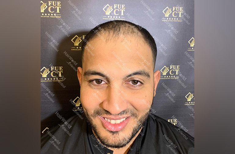 Ervaring HairworldIstanbul Mob 1