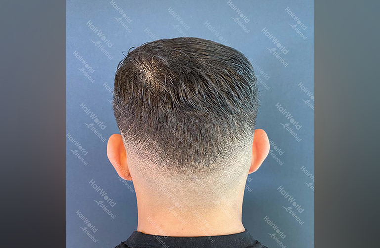 Ervaring HairworldIstanbul Mob 10