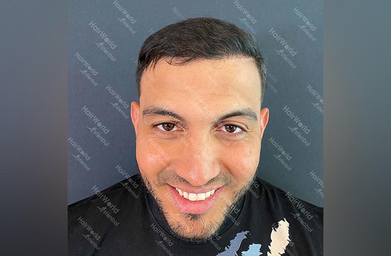 Ervaring HairworldIstanbul Mob 2