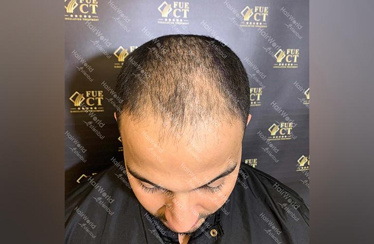 Ervaring HairworldIstanbul Mob 3