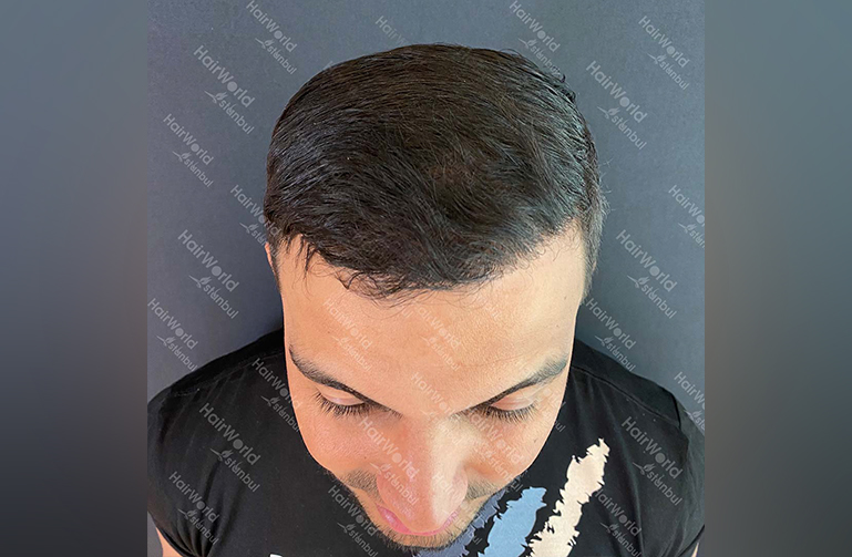 Ervaring HairworldIstanbul Mob 4