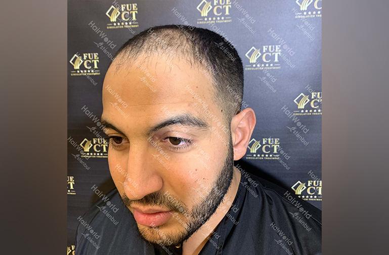 Ervaring HairworldIstanbul Mob 5