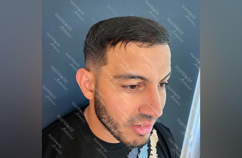 Ervaring HairworldIstanbul Mob 6