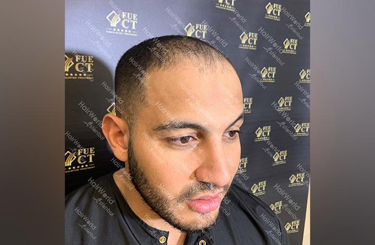 Ervaring HairworldIstanbul Mob 7