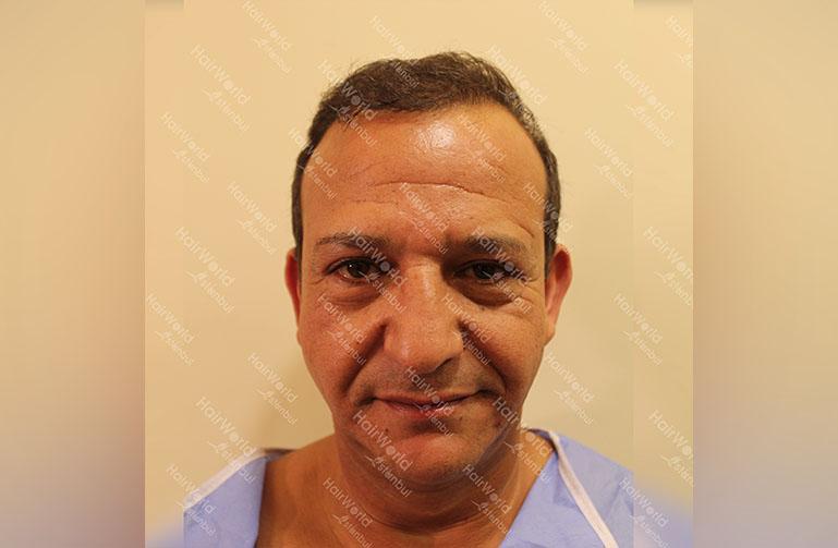 http://najib-amhali-haartransplantatie-hairworld-istanbul