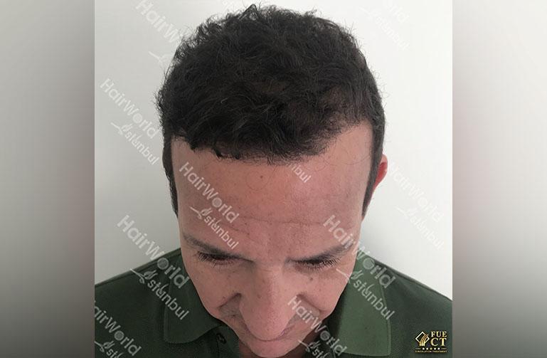 http://najib-amhali-haarimplantaten
