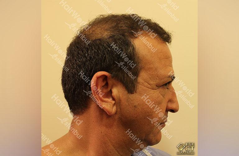 http://najib-amhali-hairworld-istanbul