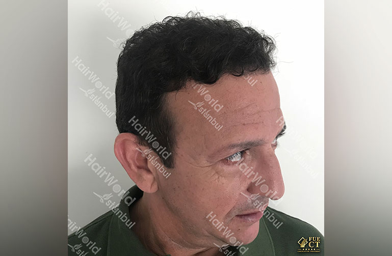 http://najib-amhali-ervaring-haartransplantatie