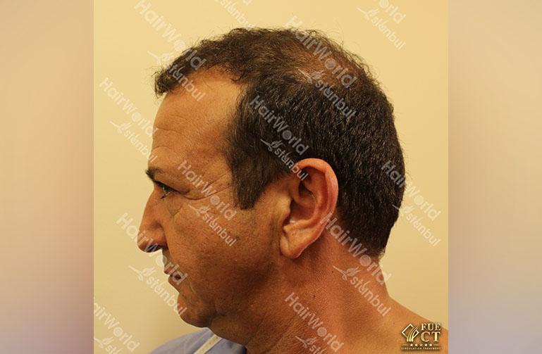 http://haartransplantatie-turkije-najib-amhali
