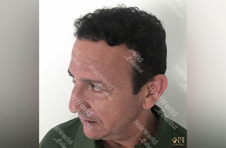 http://najib-amhali-haartransplantatie-hairworldistanbul