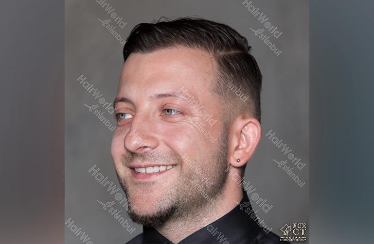 Ervaring HairworldIstanbul Polska2