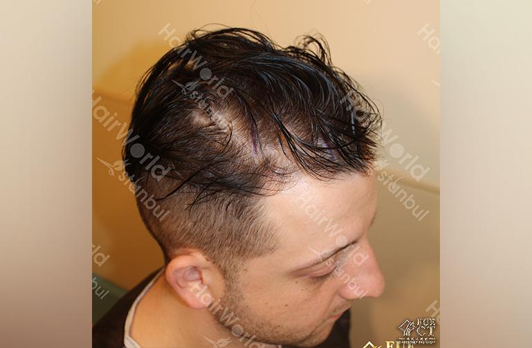 Ervaring HairworldIstanbul Polska3