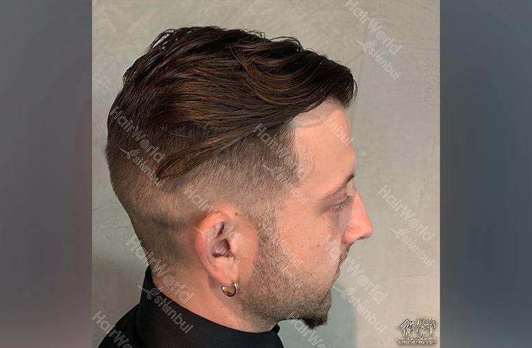 Ervaring HairworldIstanbul Polska4