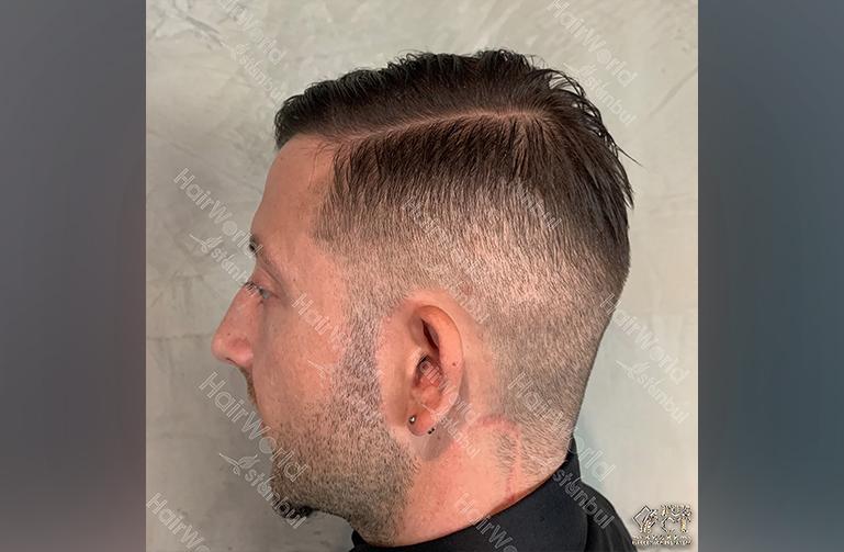 Ervaring HairworldIstanbul Polska6