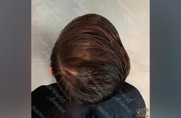 Ervaring HairworldIstanbul Polska8
