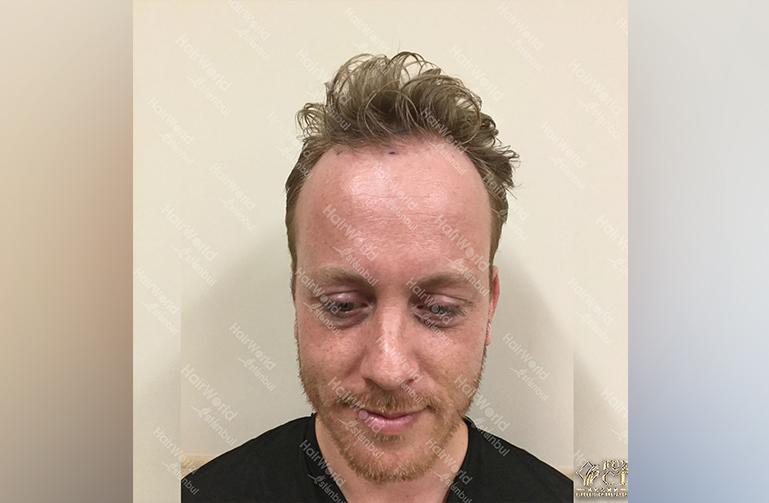 Ervaring HairworldIstanbul Remco1