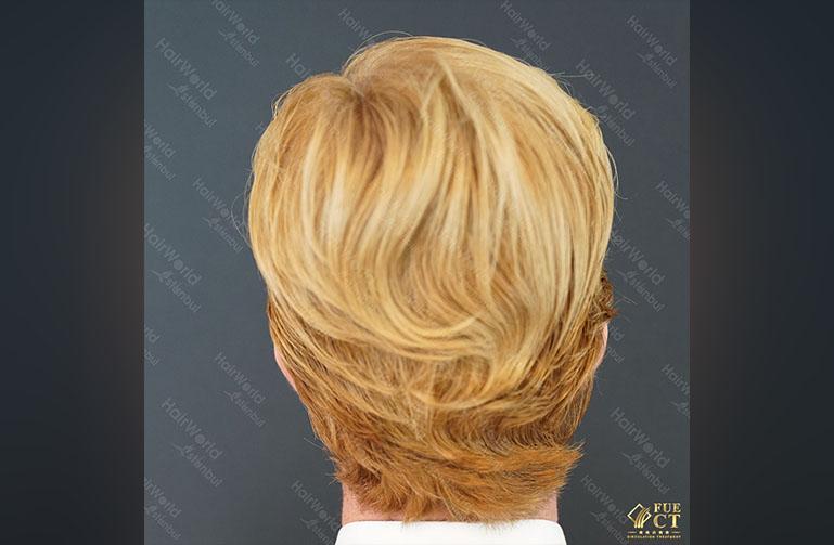 Ervaring HairworldIstanbul Remco10