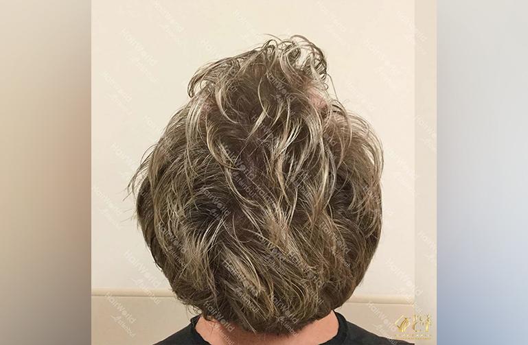 Ervaring HairworldIstanbul Remco11