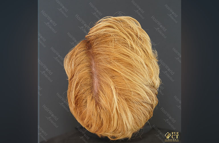 Ervaring HairworldIstanbul Remco12