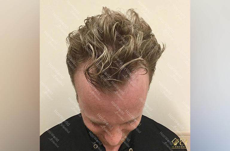 Ervaring HairworldIstanbul Remco3