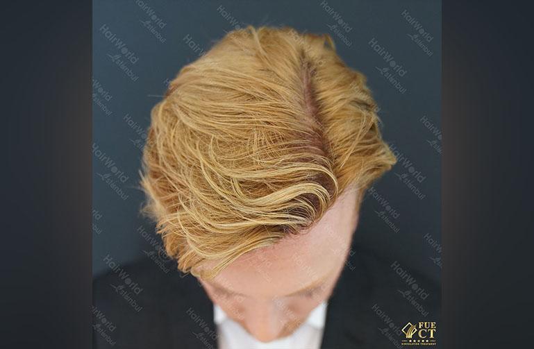 Ervaring HairworldIstanbul Remco4