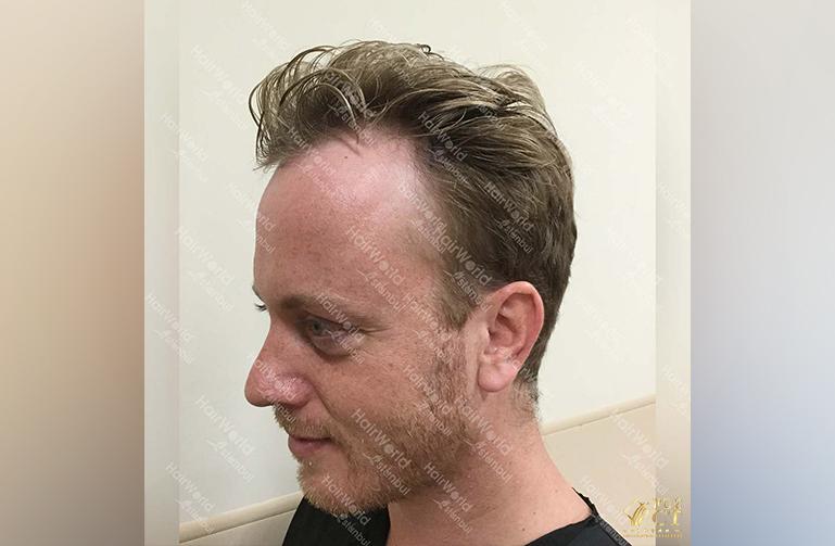 Ervaring HairworldIstanbul Remco5