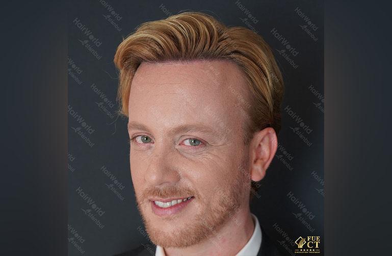 Ervaring HairworldIstanbul Remco6