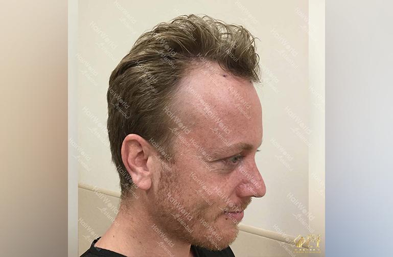 Ervaring HairworldIstanbul Remco7