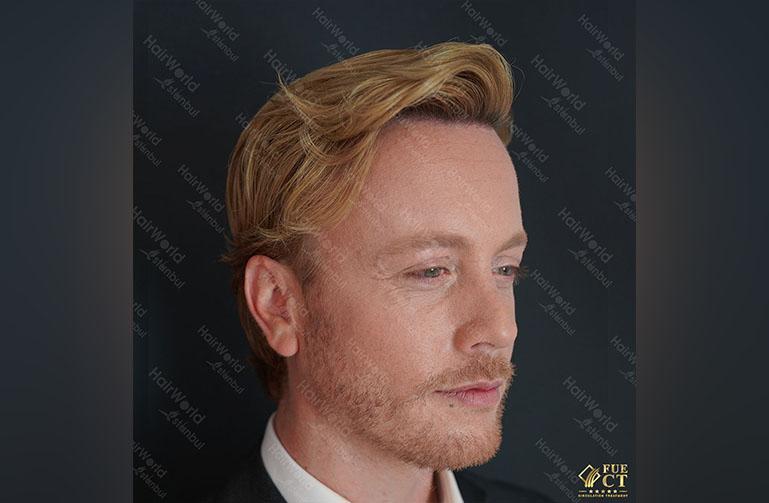 Ervaring HairworldIstanbul Remco8