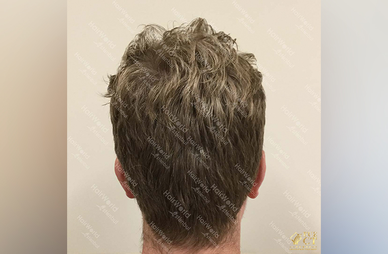 Ervaring HairworldIstanbul Remco9