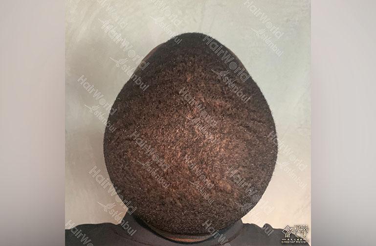 Ervaring HairworldIstanbul Royston11