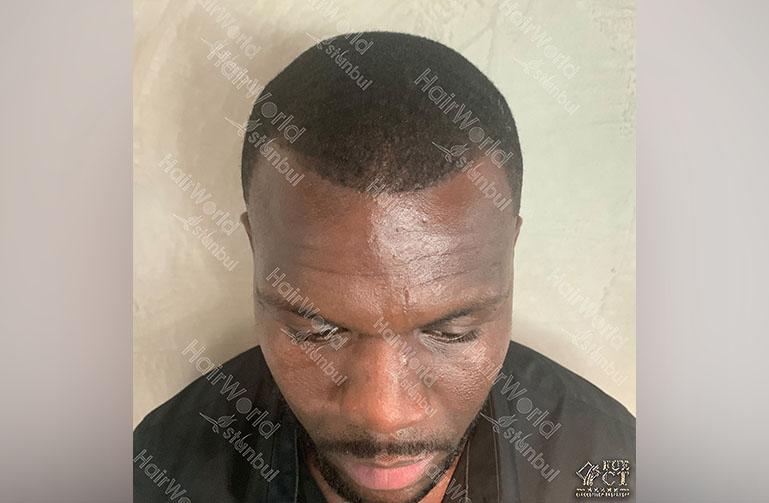Ervaring HairworldIstanbul Royston3