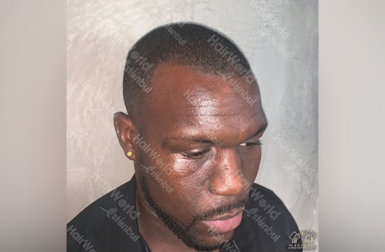 Ervaring HairworldIstanbul Royston5