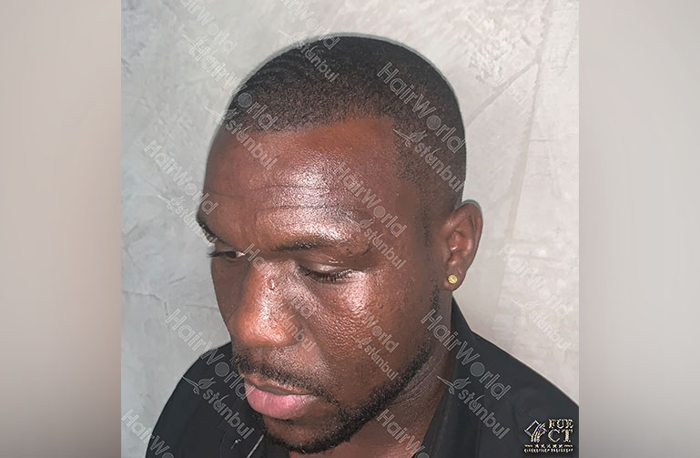 Ervaring HairworldIstanbul Royston7
