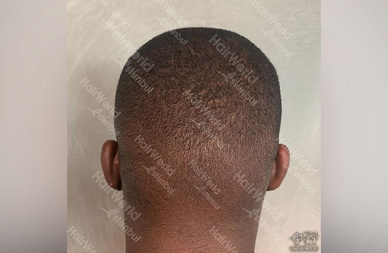 Ervaring HairworldIstanbul Royston9