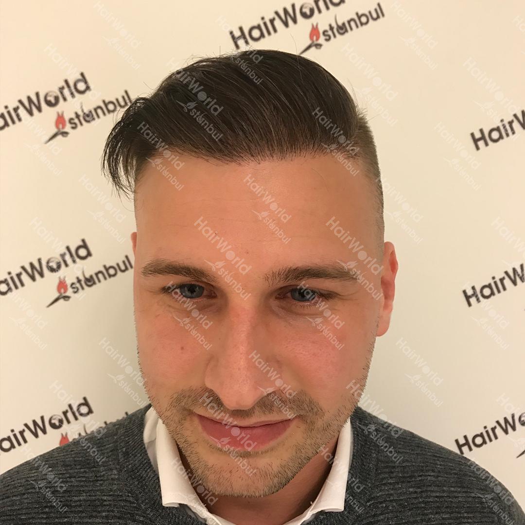 Ervaring HairworldIstanbul after2 1