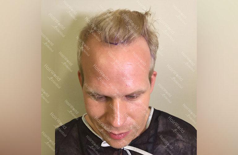 Ervaring HairworldIstanbul rick1