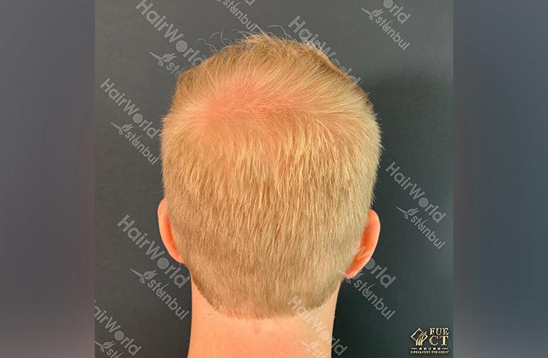 Ervaring HairworldIstanbul rick10