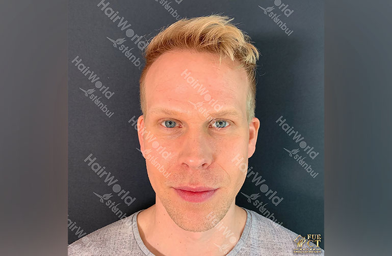 Ervaring HairworldIstanbul rick2
