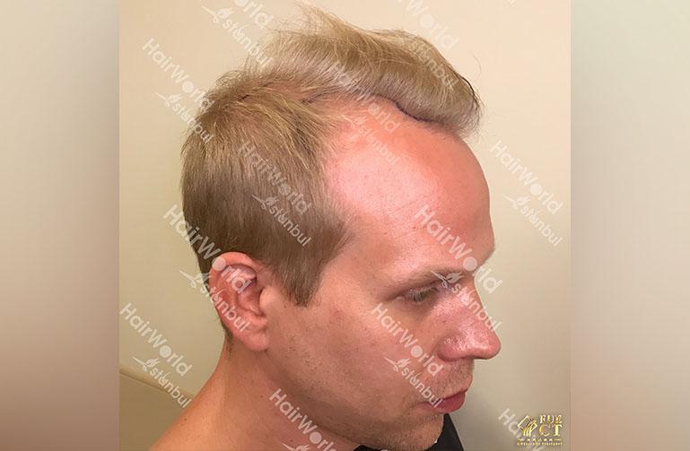 Ervaring HairworldIstanbul rick5