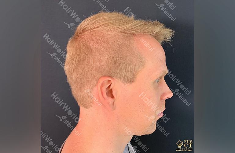 Ervaring HairworldIstanbul rick6