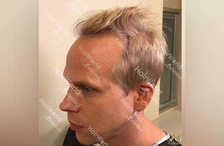 Ervaring HairworldIstanbul rick7