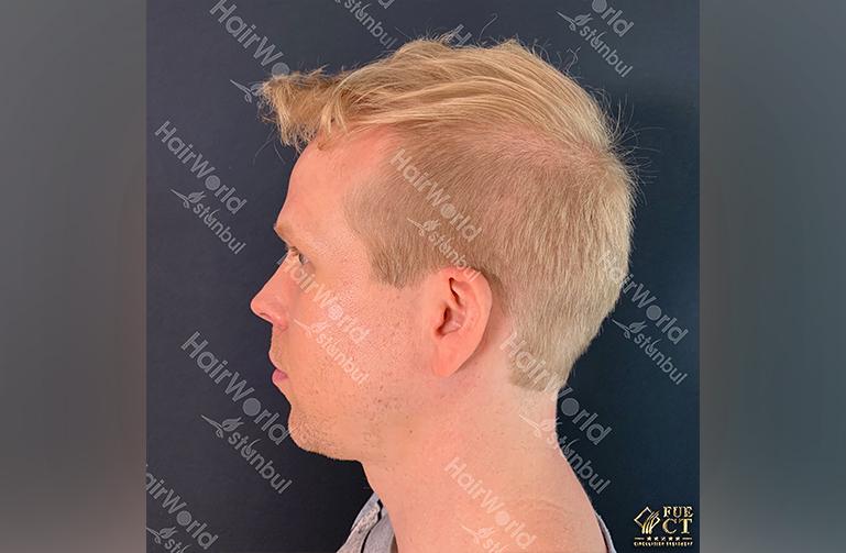 Ervaring HairworldIstanbul rick8