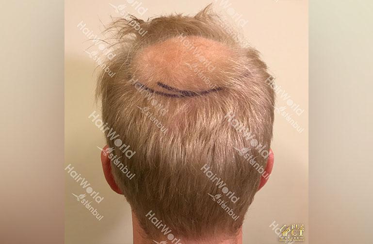 Ervaring HairworldIstanbul rick9