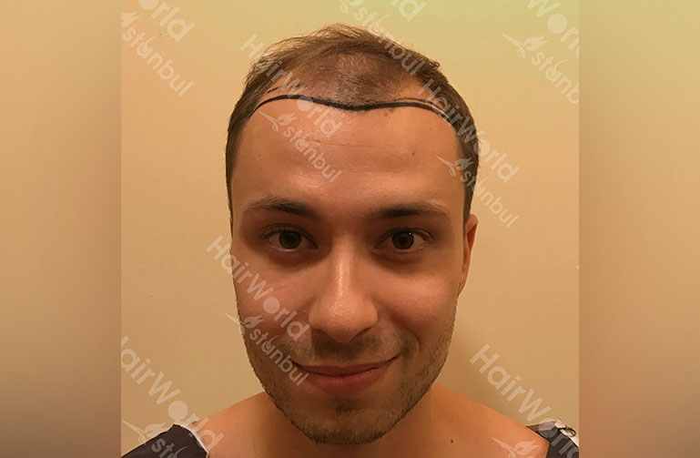 Ervaring HairworldIstanbul rutger1