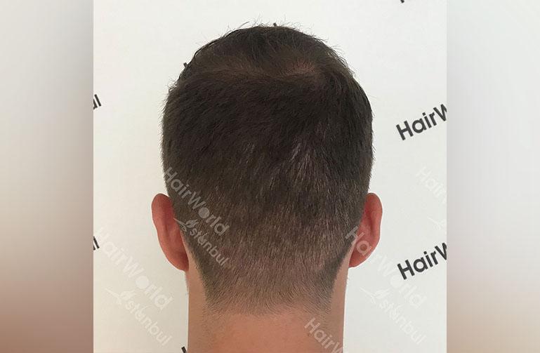 Ervaring HairworldIstanbul rutger10