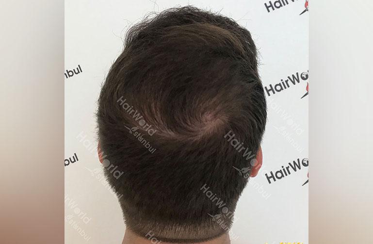 Ervaring HairworldIstanbul rutger12